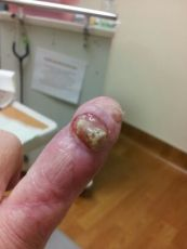 finger-before
