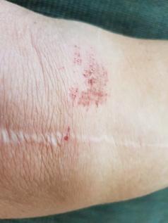 6-6 bruised knee