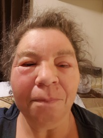 alergy pic 2 6-15