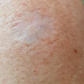 scar-now.jpg