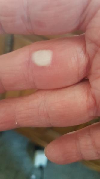 hot wax blister 1