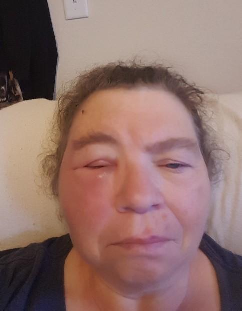 Rachel wasp sting